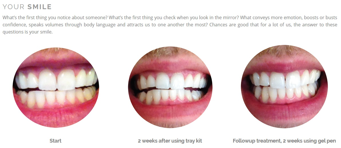 Club-Smile-Teeth-Whitening