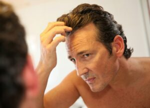 Men's Guide To Thinning Hair